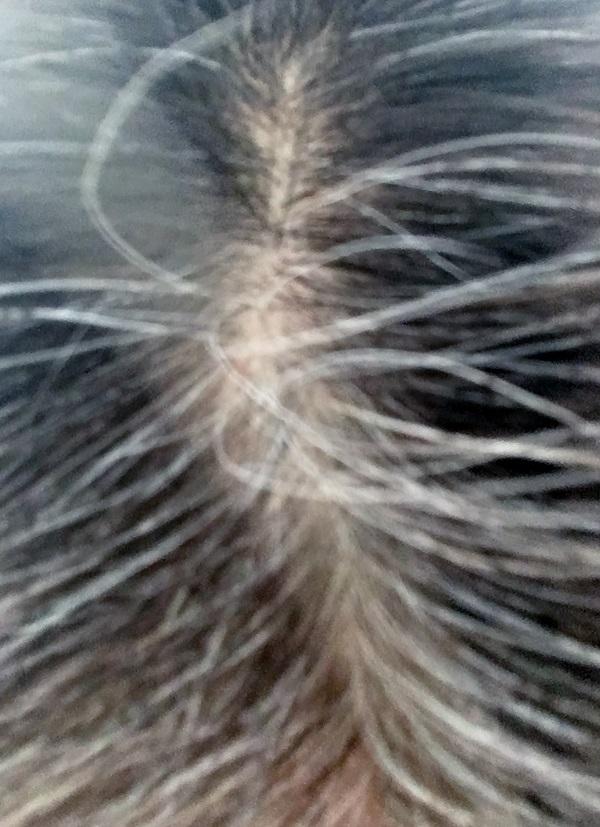 最近、美容院へ行く前の私の頭頂部の写真